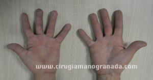 Casco clínico 1-5 web