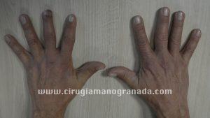 Caso clínico 1-1 web
