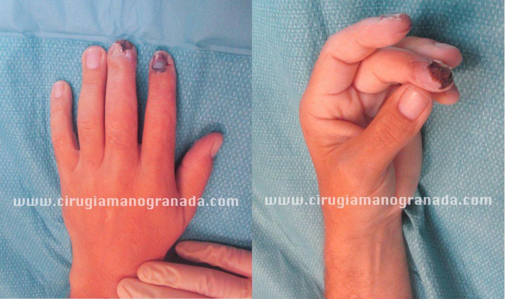 Vistas de frente y de perfil del estado del dedo antes del tratamiento